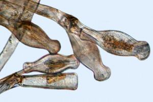 [Didymosphenia] on mucilaginous stalks, X200. Photo: Manaaki Whenua